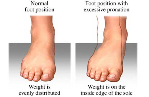 Pronation is the inward rolling of the foot and ankle